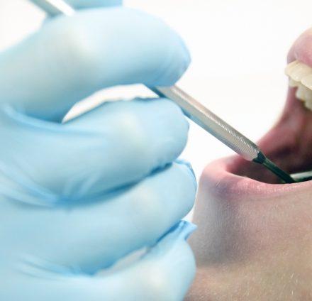 予防歯科医療